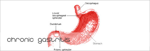 gastritis - medical condition essay Gastritis commonly refers to inflammation of the lining of the stomach, but the term is often used to cover a variety of symptoms resulting from stomach lining inflammation and symptoms of burning or discomfort.