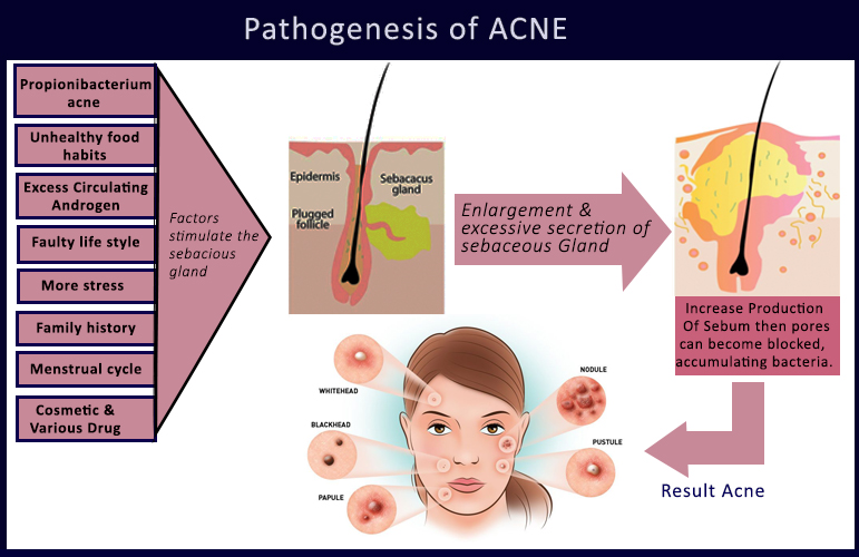 pathogenesis of acne