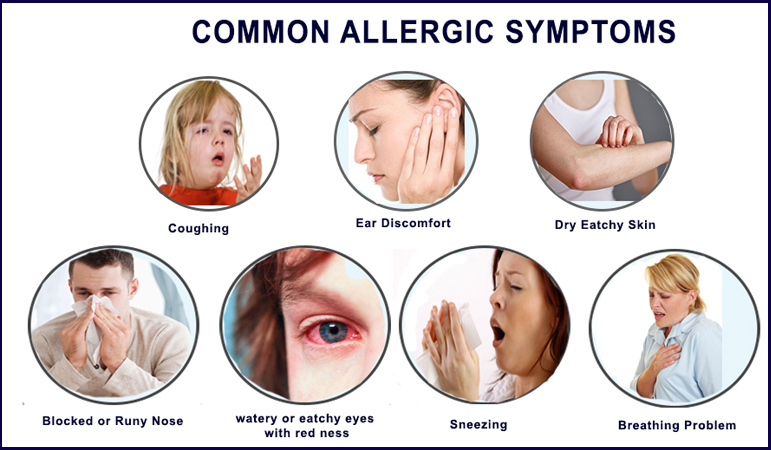common allergic symtoms
