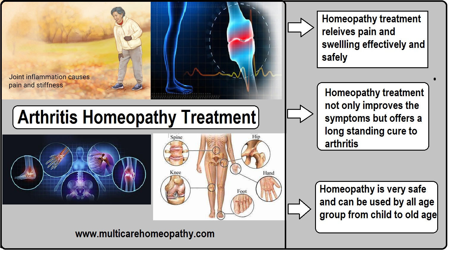 homeopathy for arthritis