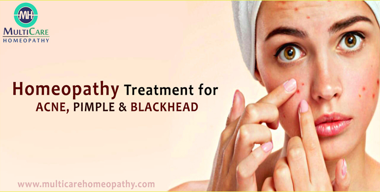 6 Best Homeopathic Medicines for Acne, Pimples, Blackhead