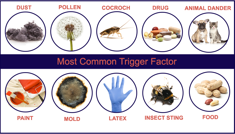 Most Common Trigger Factor