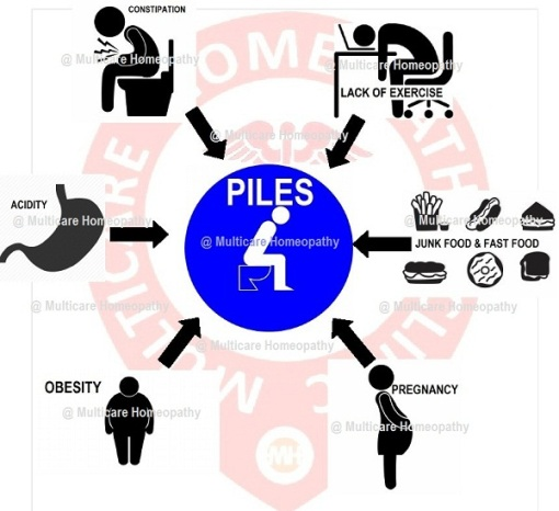 6 Best Homeopathic Medicine For PILES Treatment