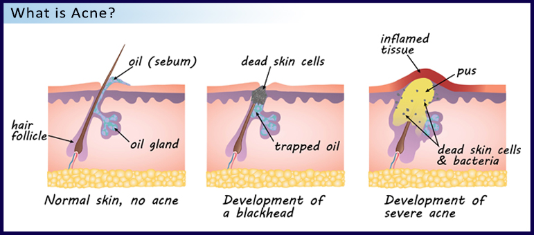 thesis on acne vulgaris Complementary therapies for acne vulgaris (review) cao h, yang g, wang y,  liu jp, smith ca, luo h, liu y this is a reprint of a cochrane review, prepared.