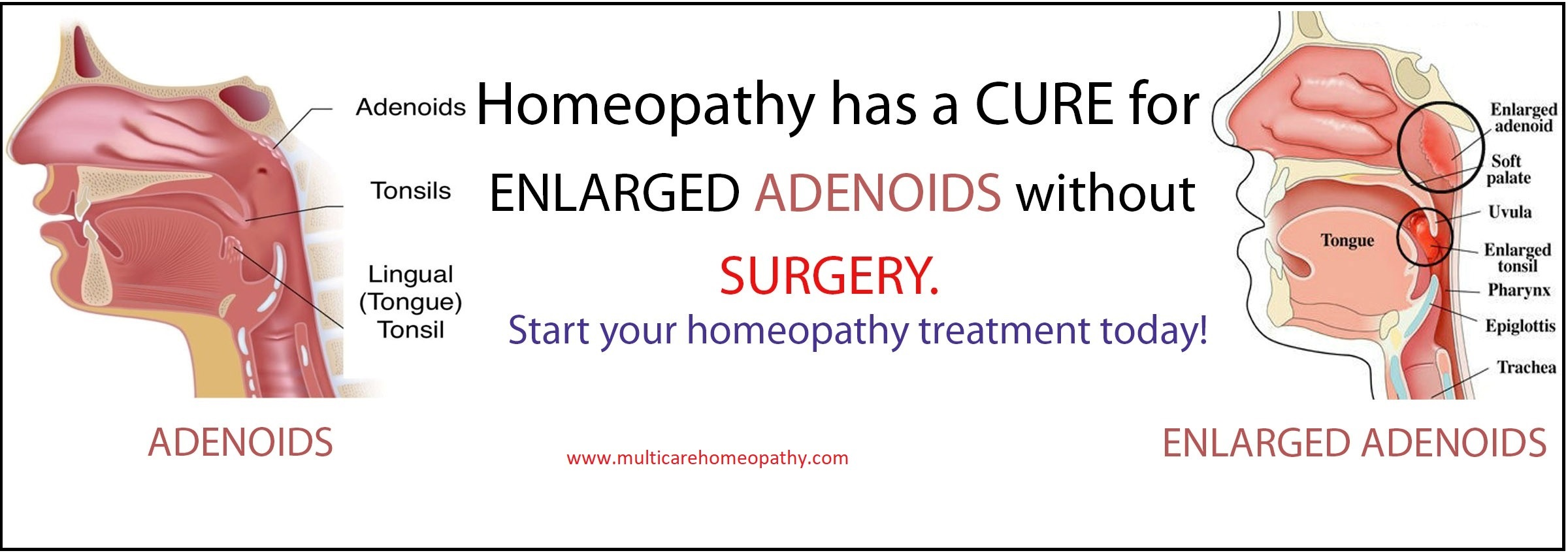 Homeopathic Medicines for ADENOIDS treatment