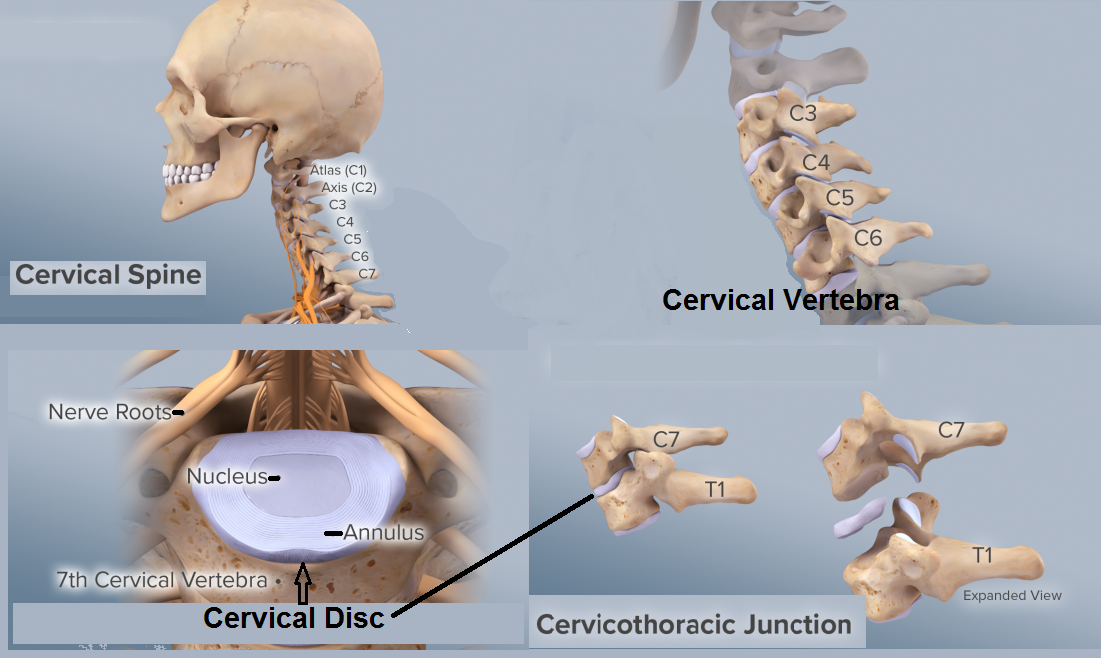 6 Best Homeopathic Medicines For Cervical Spondylosis And Neck Pain