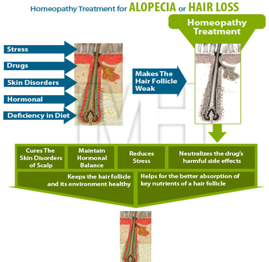 homeopathy treatment for hair fall