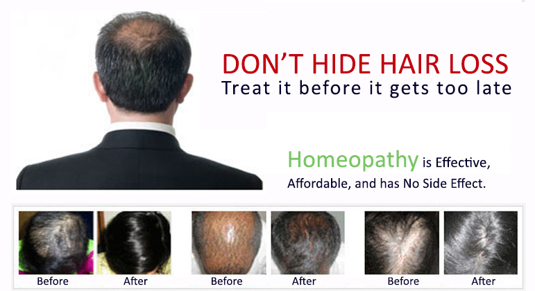 homeopathy treatment for alopecia or hairfall