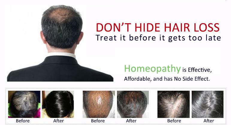 Treating female pattern hair loss ...