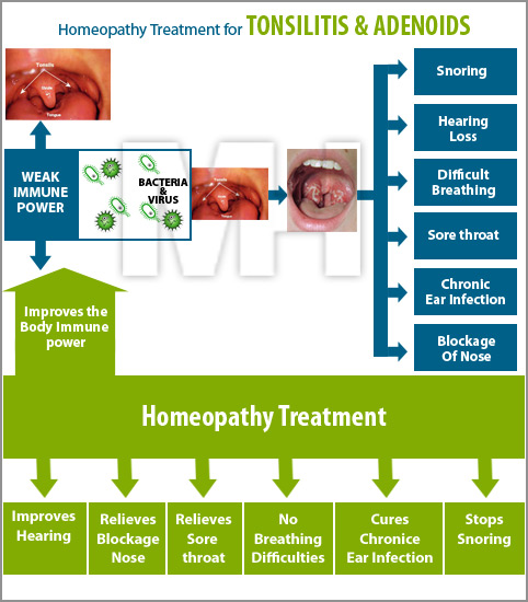 homeopathy treatment for tonsillitis