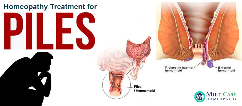 6 Best Homeopathic Medicine for PILES Treatment  which can