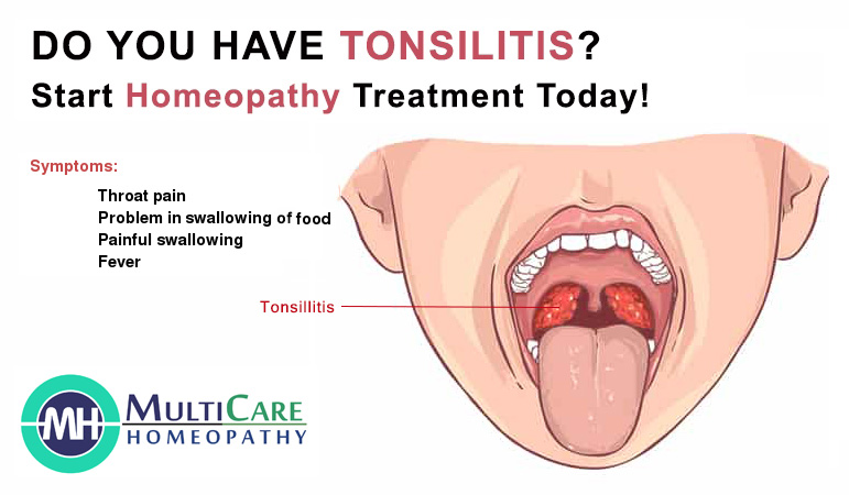 6 Best Homeopathic Medicines For Tonsillitis Treatment