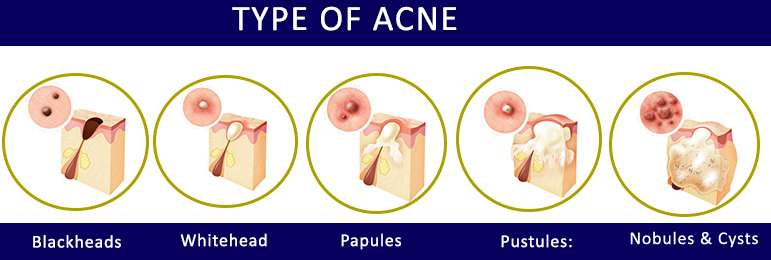 6 Best Homeopathic Medicines for Acne, Pimples, Blackhead Treatment