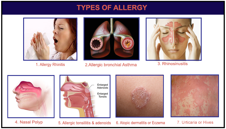 type of allergy